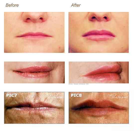 restylane-lips