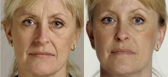 Facial-fillers-restylane1