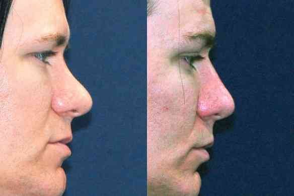 non_surgical_nose_job_los_angeles_non_surgical_nose_job_with_fillers_01