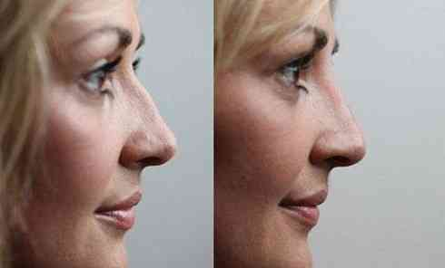 preenchimento-para-corrigir-nariz-2