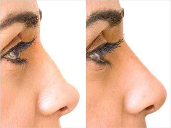 restylane-nose-reshaping-before-after