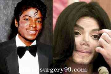 wpid-michael-jackson-plastic-surgery-before-and-after-n-1