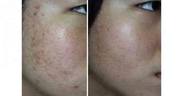 Acne-using-Photodynamic-(PDT)-Therapy-before-and-after-2_l