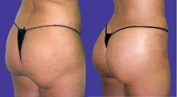 butt-lift-case-3-before-after