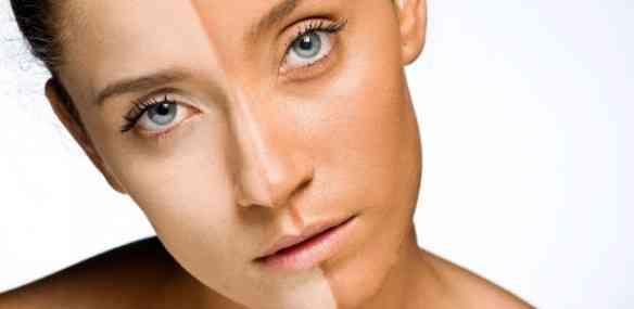 modelo-com-metade-do-rosto-bronzeado-1322246043665_615x300