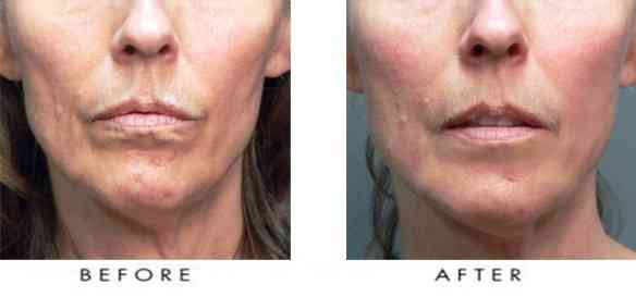Sculptra-Face-Filler