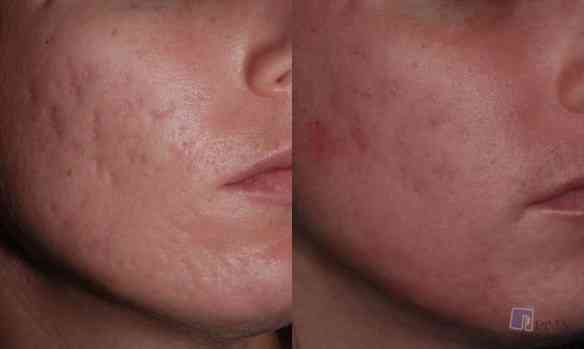 Acne-Scarring_1
