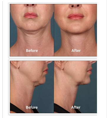 Eliminating+the+Dreaded+Double+Chin+with+Kybella™+Injections