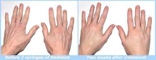 HandsBeforeAndAfter2Web