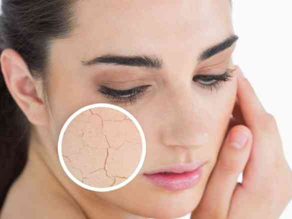 dry-skin-2