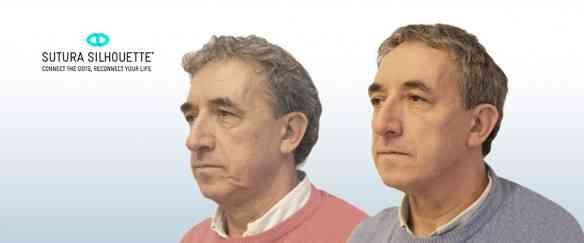 rodrigo-fuzaro-cirurgia-plastica-sutura-silhouete