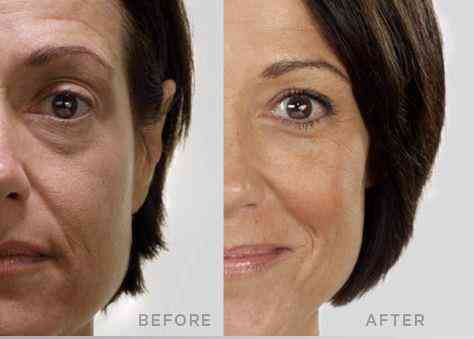 Jeunesse Before_After
